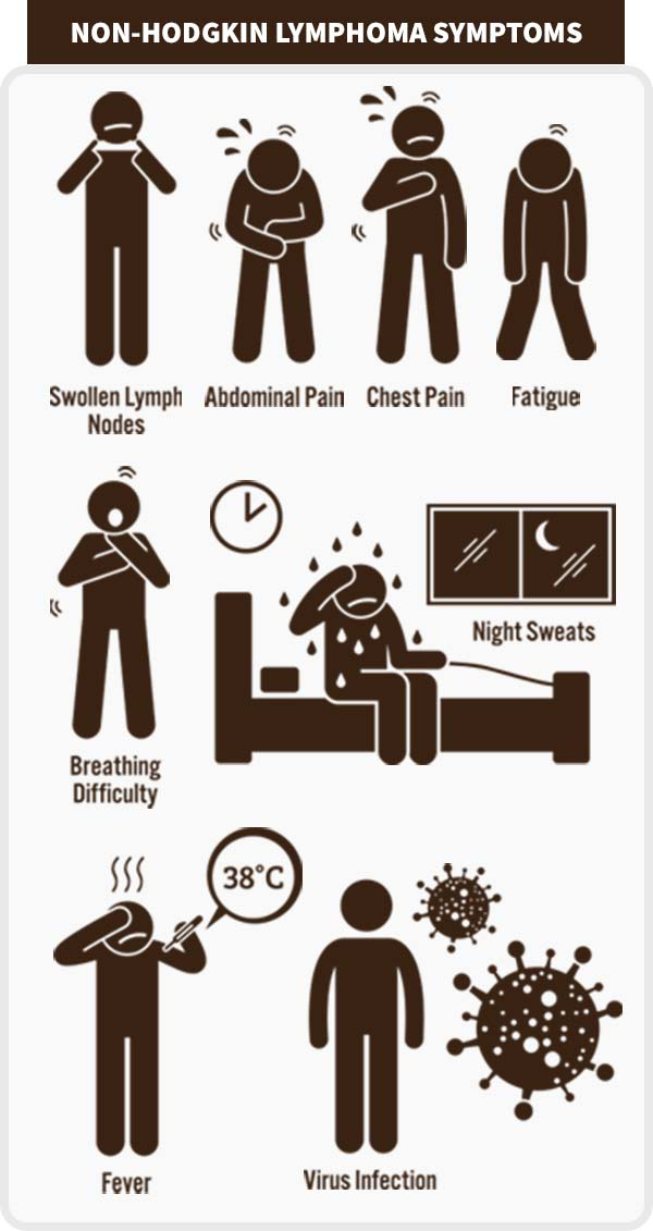 Non-Hodgkin Lymphoma Symptoms